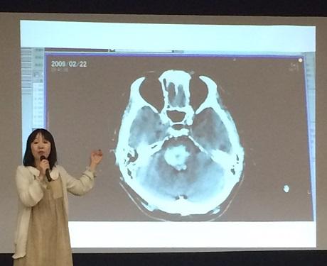 宮田俊也さんの脳幹出血の状況について説明する山元加津子さん