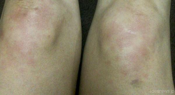 両膝に赤い斑点が突如現れた=撮影・岩村美佳